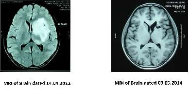 mri_of_brain